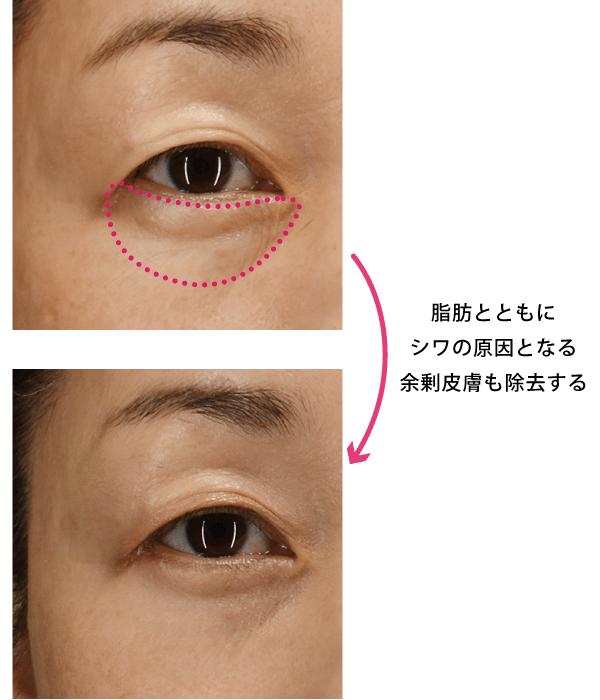 目の下の脱脂 + 余剰皮膚切除