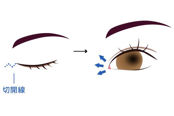 目頭切開の手術方法