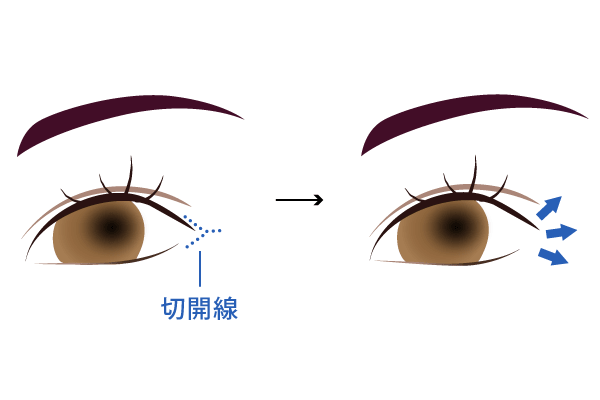 目尻切開の手術方法
