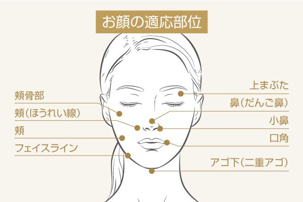 脂肪溶解注射:お顔の適用部位