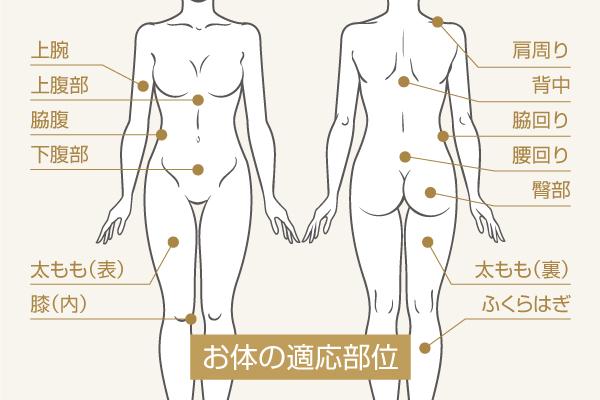 脂肪溶解注射:お体の適用部位