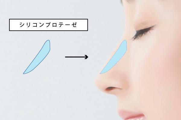 医療用プロテーゼ(人工物)