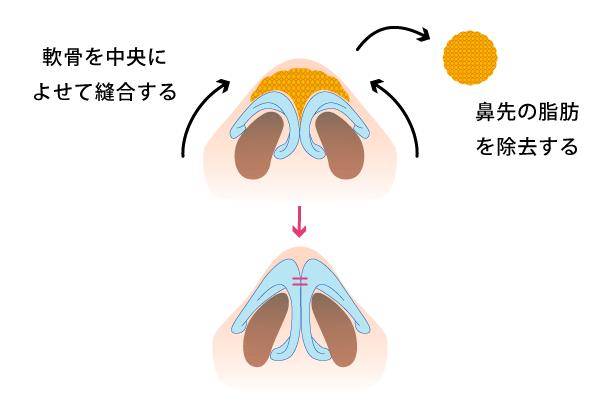 だんご鼻の原因を取り除き、スッと高い鼻に