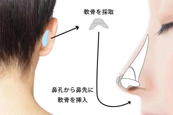 耳介軟骨の移植して、より高く整った鼻先に