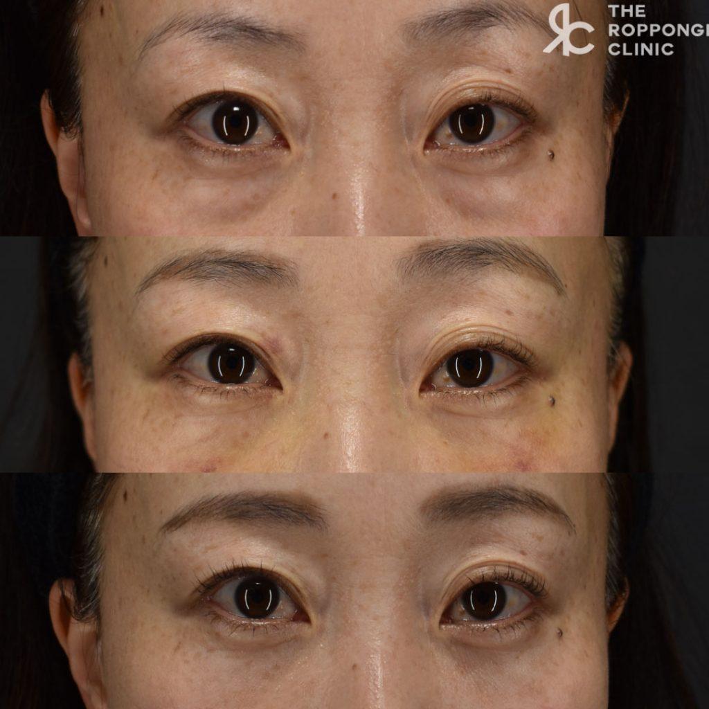 目の下の脱脂と脂肪注入~ダウンタイムについて~
